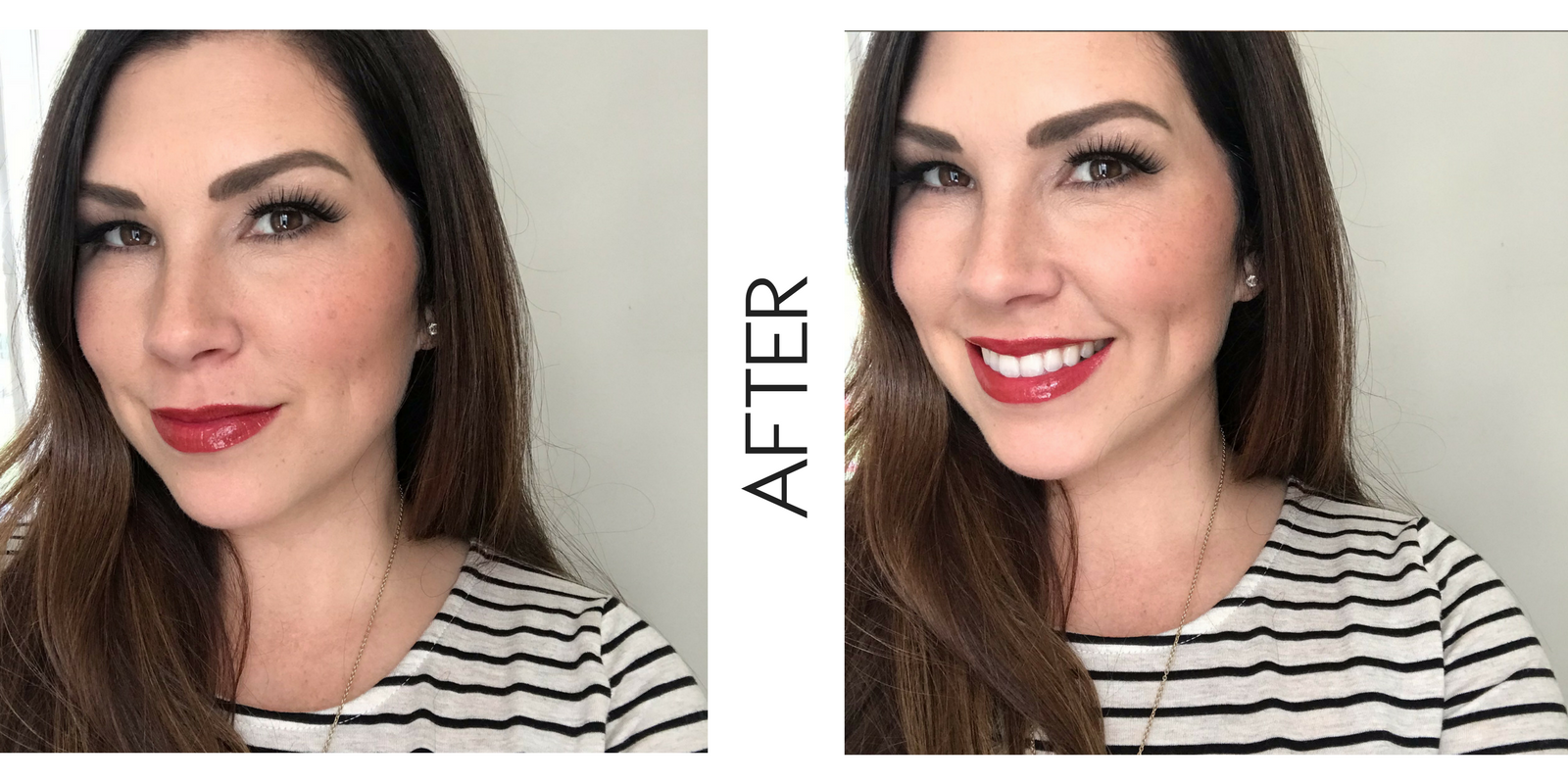 I'm dishing out the details on my very first experience with botox and lip fillers on the blog! Plus, sharing my before and after photos!
